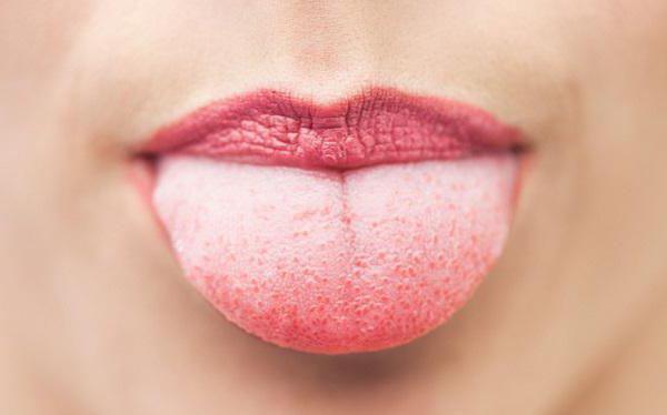 nyelv papillae gyulladás kezelése